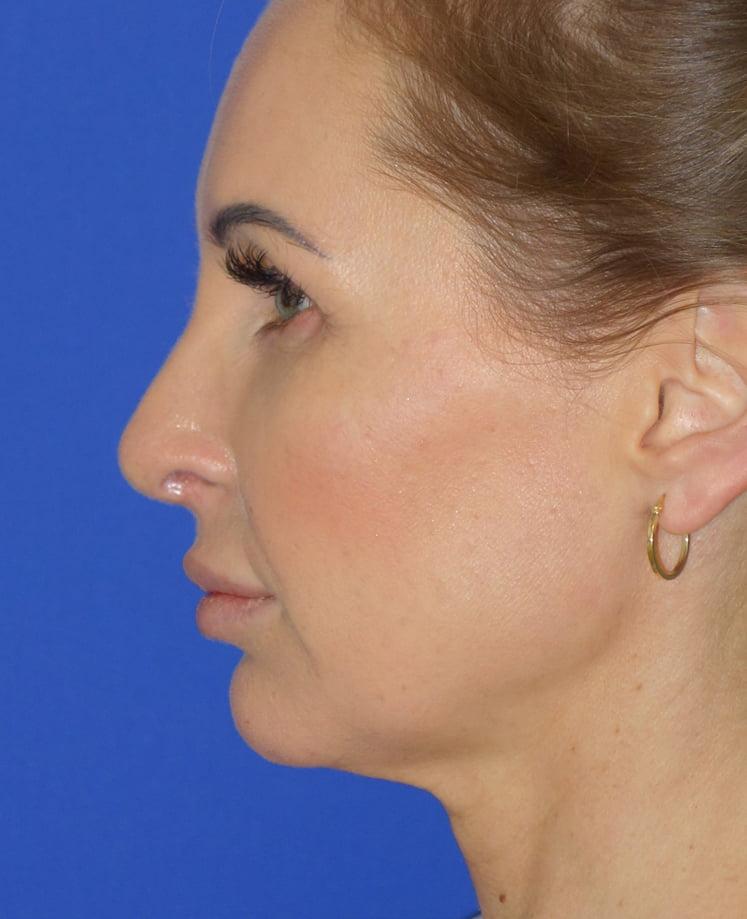 Pełna korekta nosa przed i po