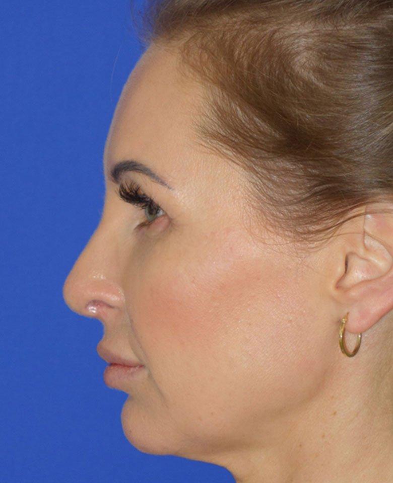 Klinika Dr Osuch Chirurgia Estetyczna - Pełna korekta nosa
