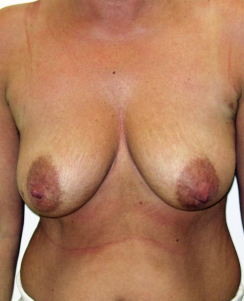 Plastyka piersi przed - Plastyka piersi po