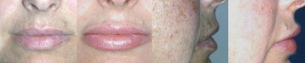 Implant ust przed - implant ust po
