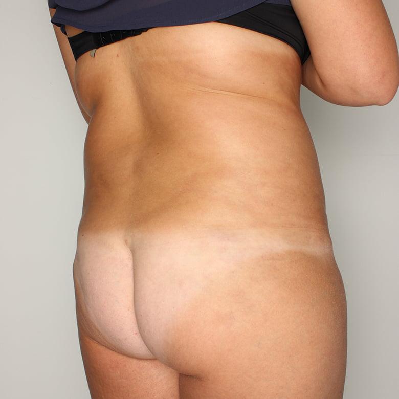 Liposukcja przed - Liposukcja po
