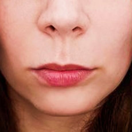 10-lip-fillers-fatigue-story