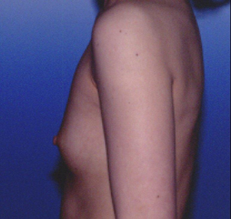 Powiększanie piersi własnym tłuszczem przed - Powiększanie piersi własnym tłuszczem po