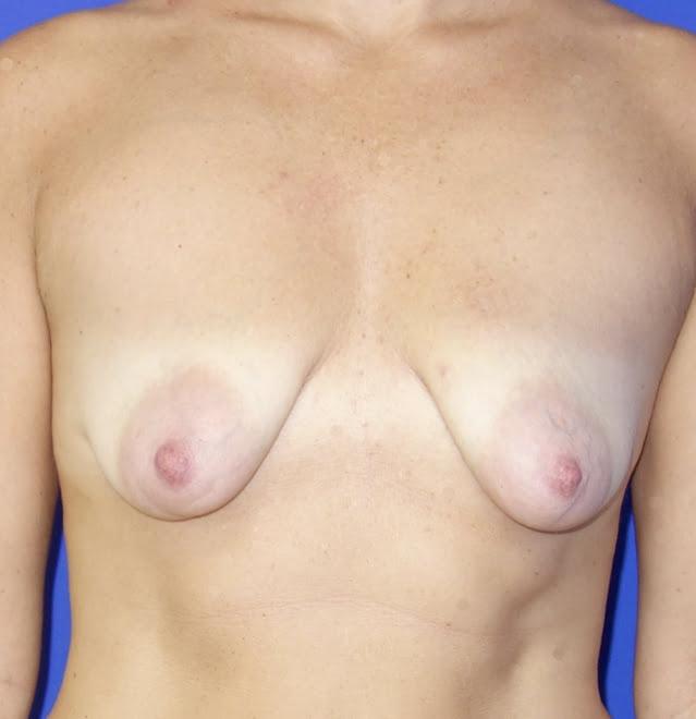 Powiększanie piersi implantami przed - Powiększanie piersi implantami po