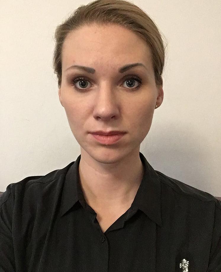 Pełna korekta nosa przed - Pełna korekta nosa po