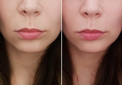 Lip lift przed - Lip lift po