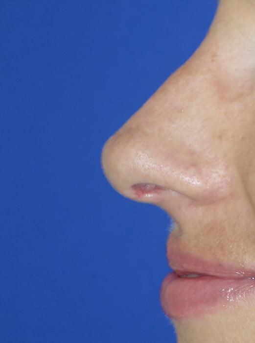 Korekcja czubka nosa przed - korekcja czubka nosa po