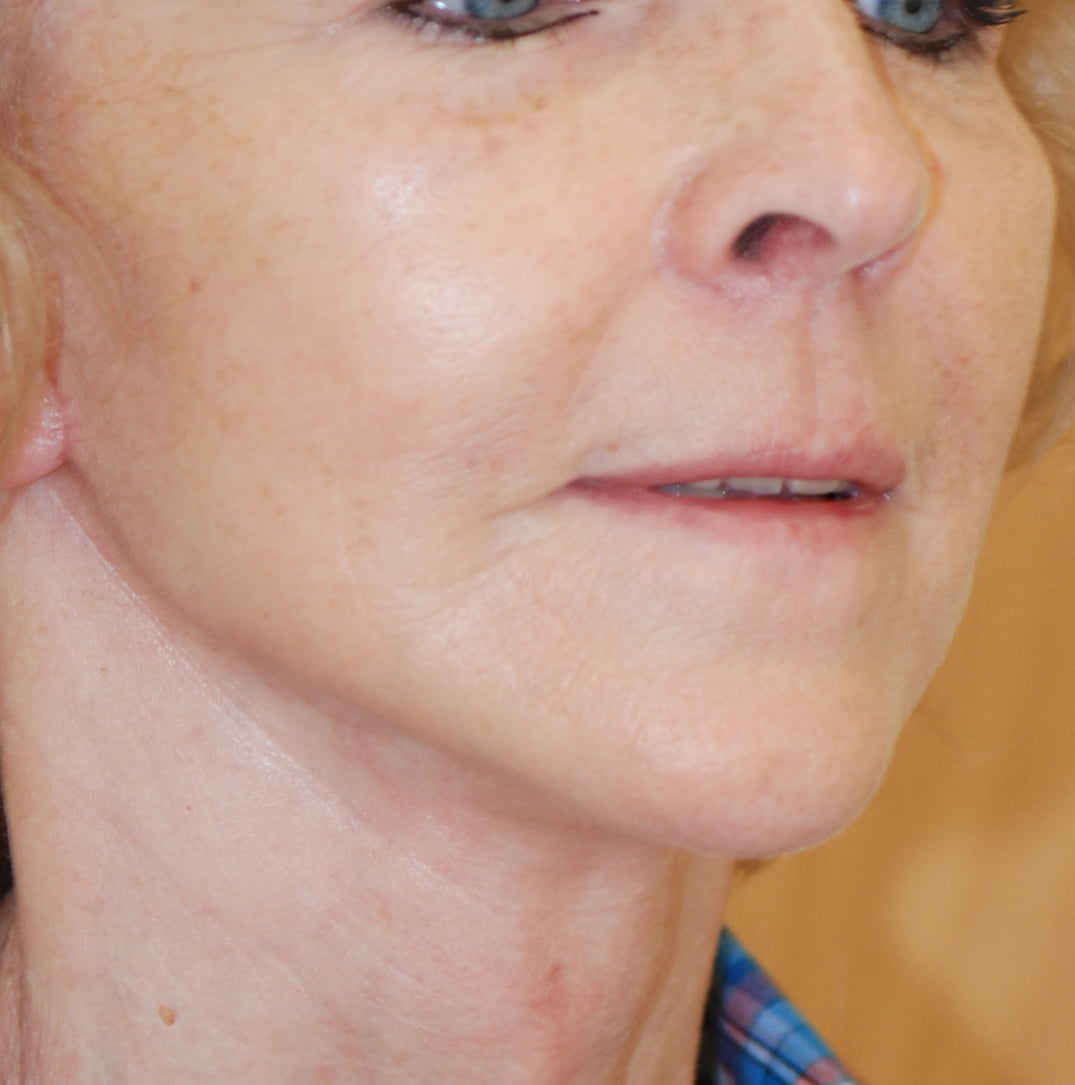 Lifting twarzy i szyi przed - Lifting twarzy i szyi po