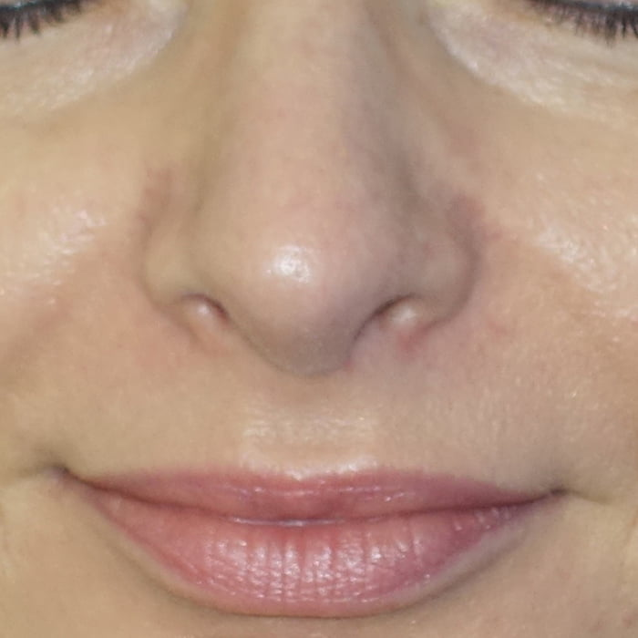 Korekta czubka nosa przed - Korekta czubka nosa po