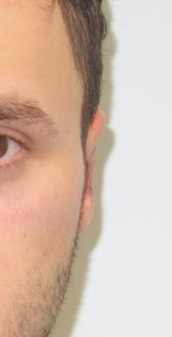 Korekcja uszu przed - Korekcja uszu po