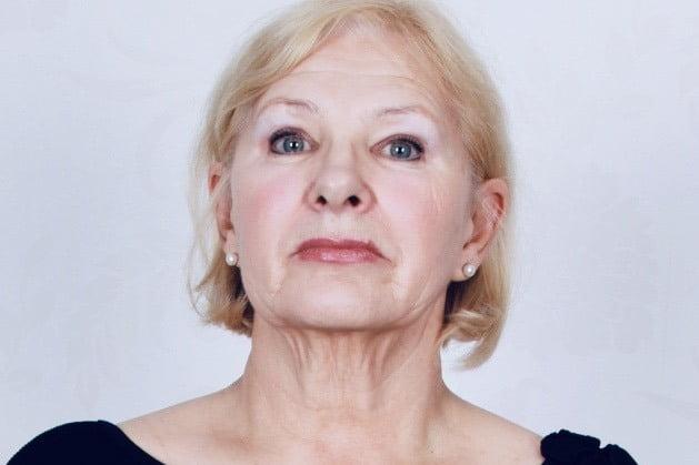 Pacjentka przed zabiegiem liftingu twarzy