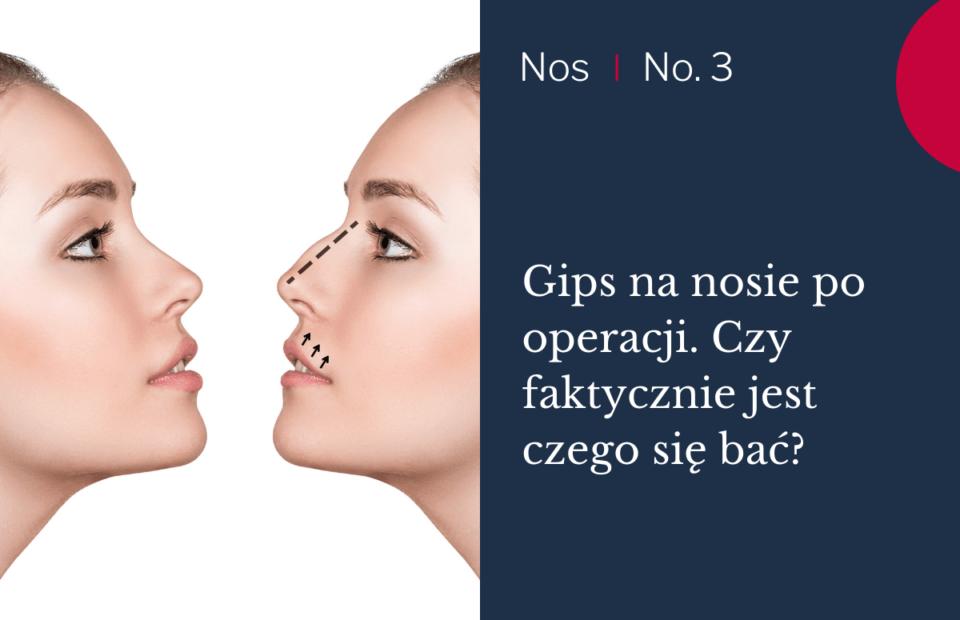 GIPS NA NOSIE