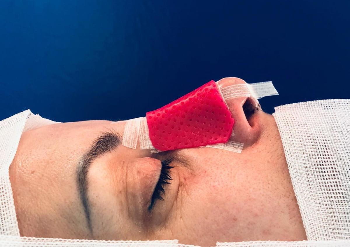 opatrunek na nos po korekcie nosa