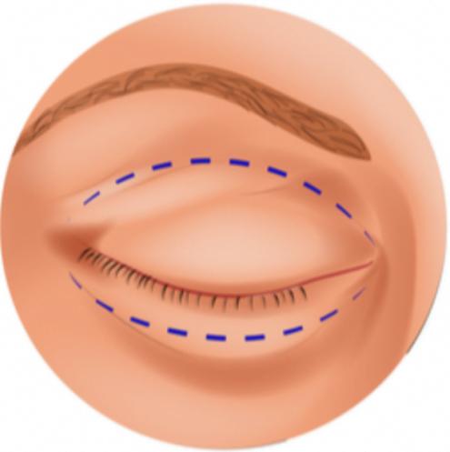 Zaznaczony obszar skóry do wycięcia.