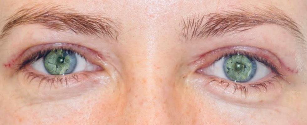 oko po plastyce powiek