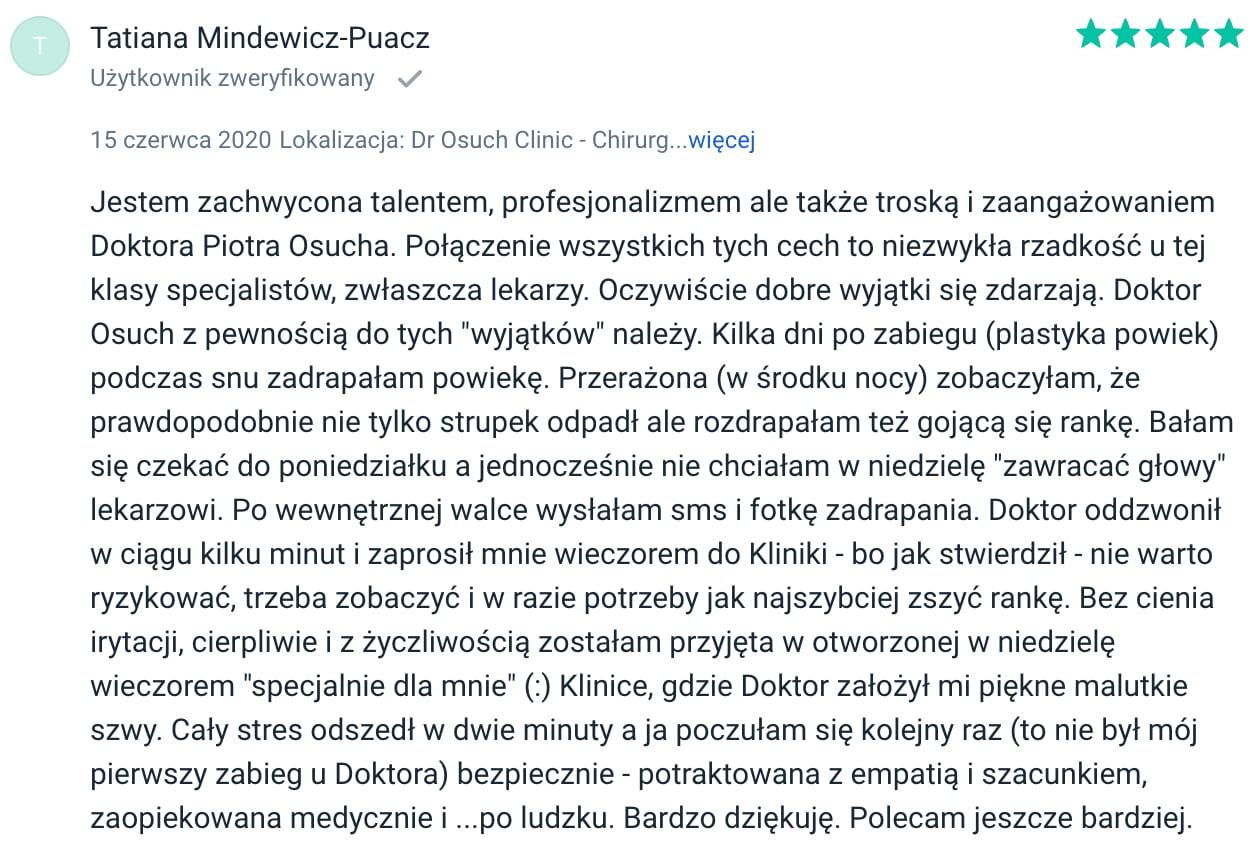 Tatiana Mindewicz Puacz - opinia o plastyce powiek w dr Osuch Clinic