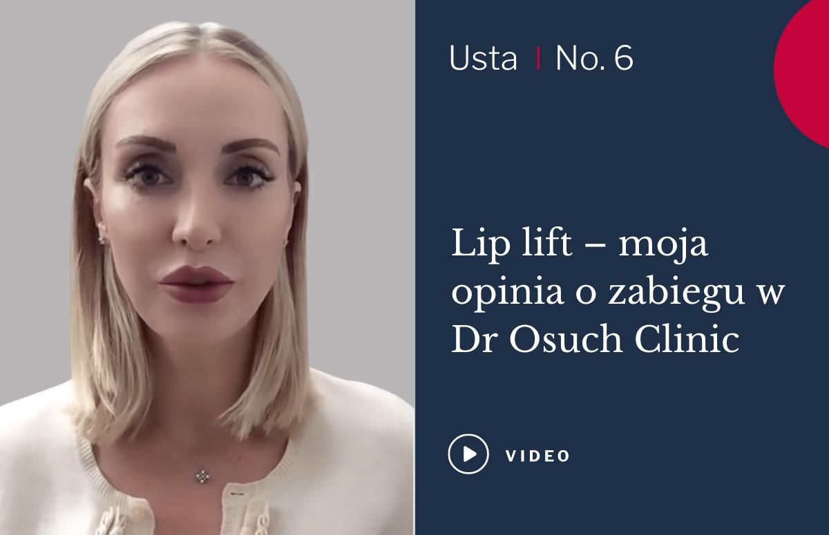 lip lift opinia pacjentki magdy
